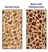 Bone Breathing brings density into the bones